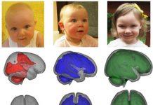 Mozak BEBA koje su hranjene isključivo dojenjem ima brži razvoj u ključnim dijelovima