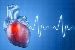 Učestalost srčanog i moždanog udara – jedan od simptoma smaka svijeta